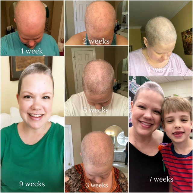 hair growth after chemo pictures